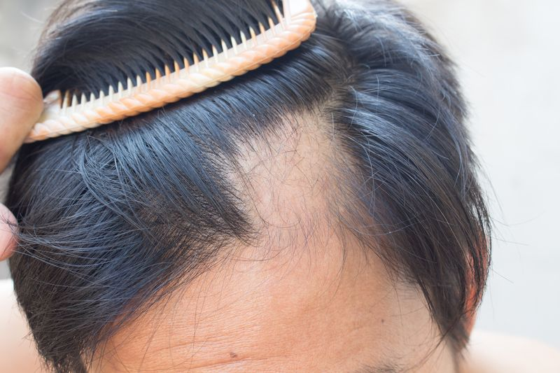 Implantes de cabello