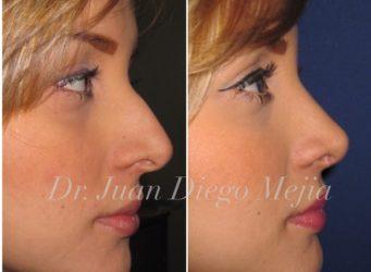 cirugía de nariz medellin