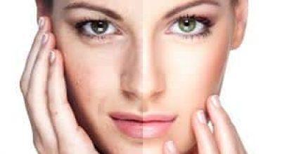 rejuvenecimiento facial medellin